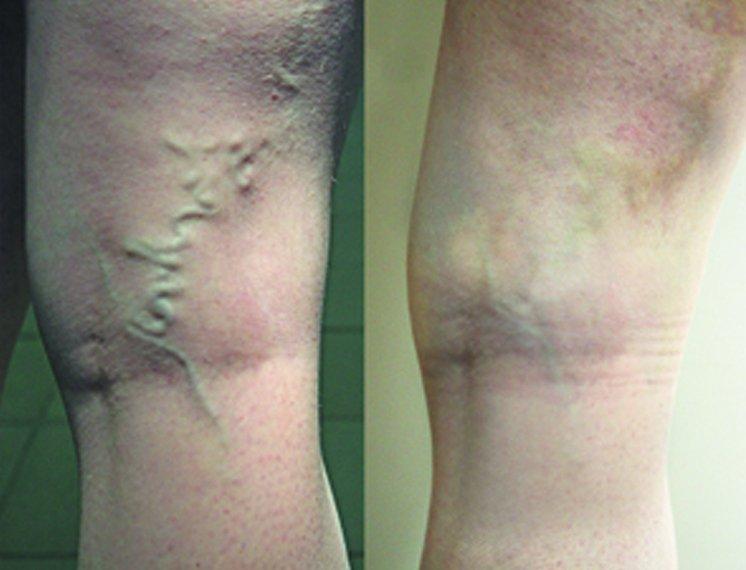 Осложнения от склеротерапии пораженных вен ног