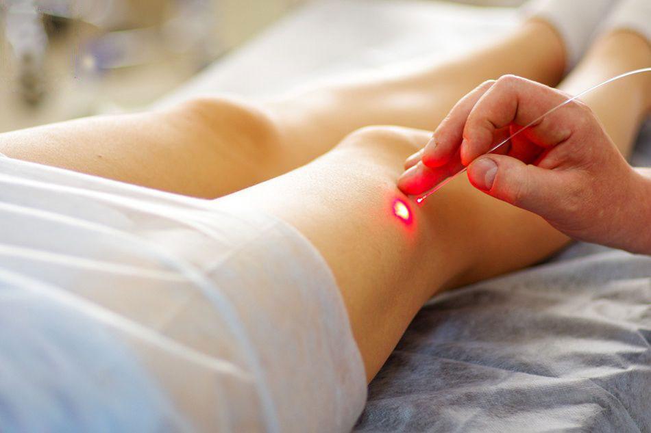 Лечение болезней вен лазером