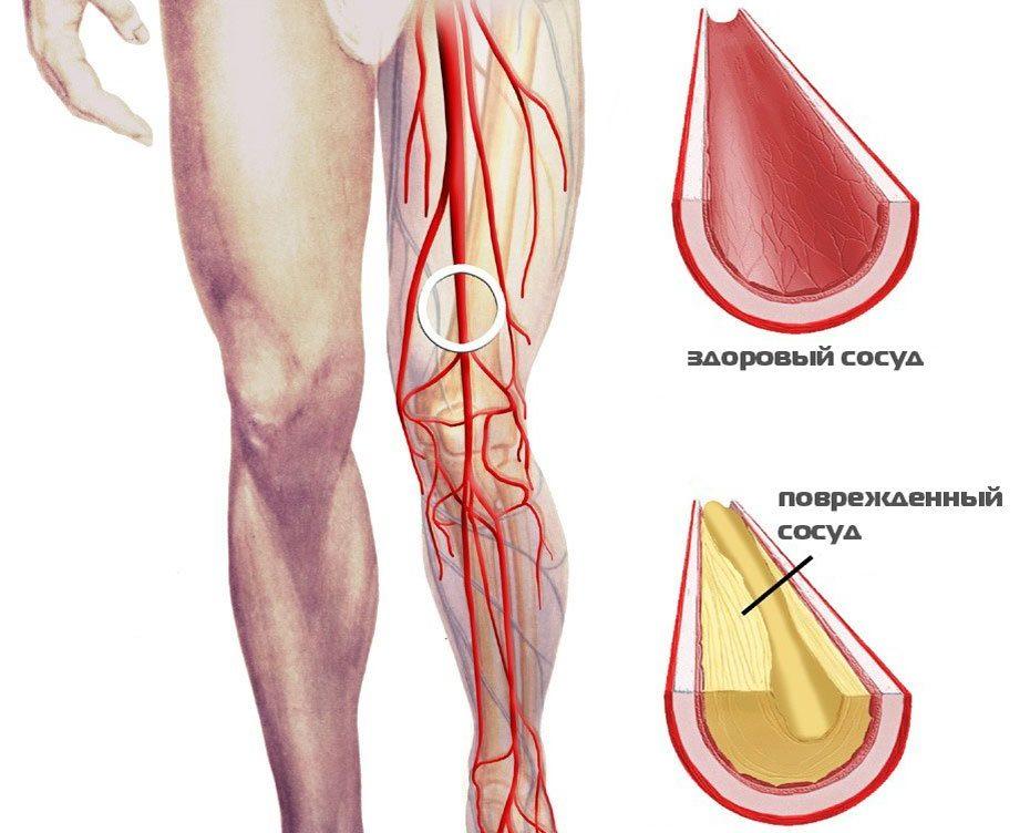 Для того, чтобы избавиться от закупорки кровеносных сосудов ног, иногда достаточно просто почистить сосуды