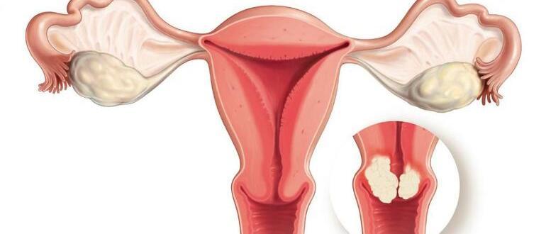 Паракератоз шейки матки — что это такое, признаки, лечение