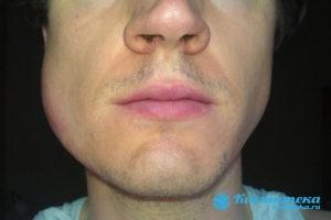 У пациента опуают щёки, язык или подбородок