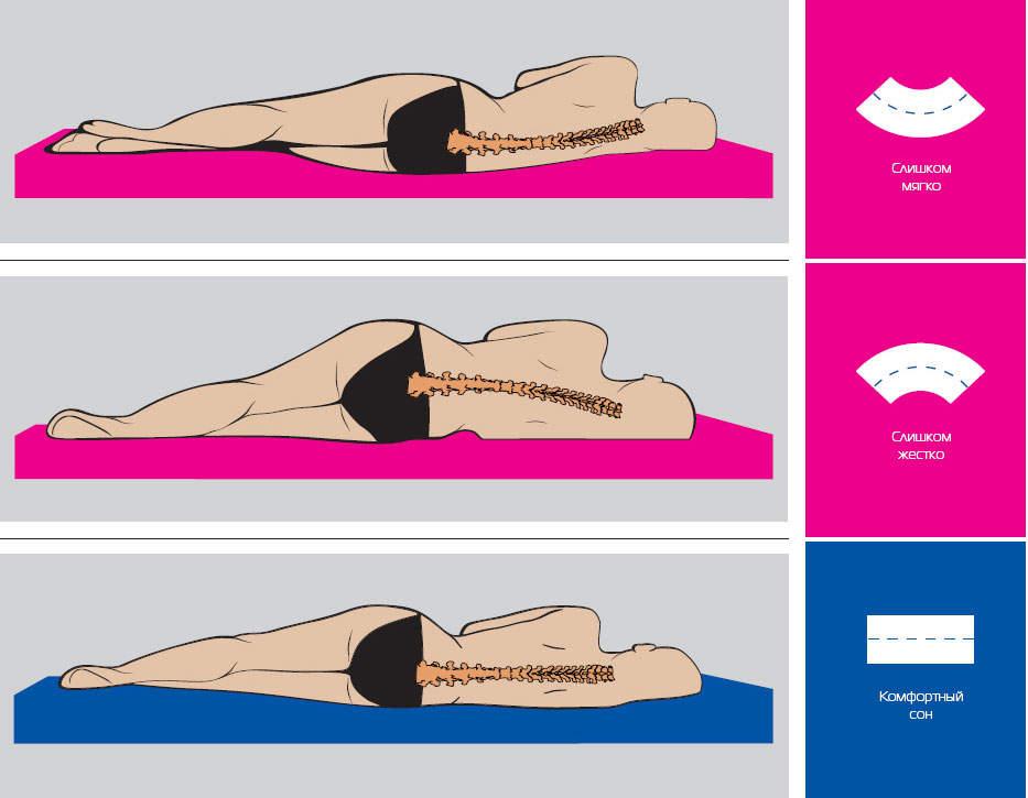 как спать при остеохондрозе
