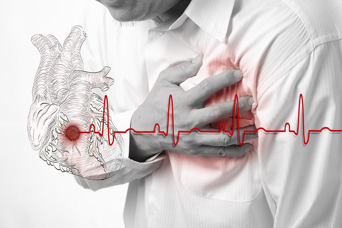 Инфаркт миокарда у больных сахарным диабетом