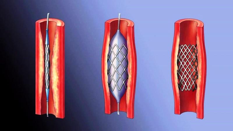 Стент имплантируемый в артерию