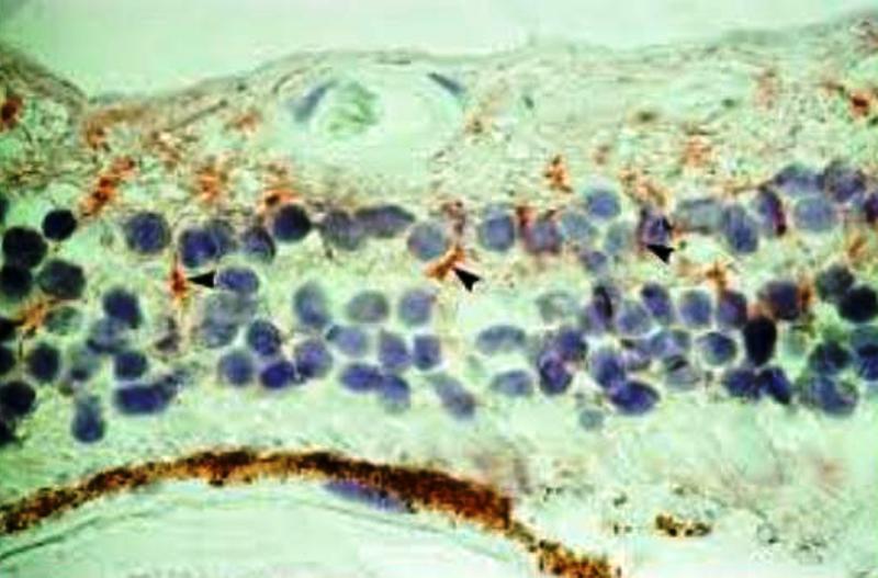 Глазной ишемический синдром