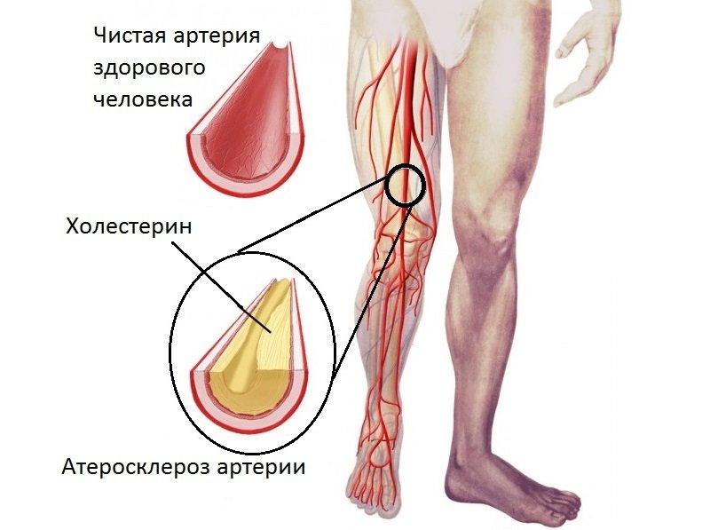 Прием препарата приводит к остановке процесса накопления холестерина и роста атеросклеротических бляшек.