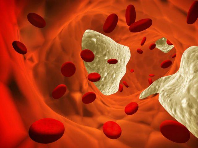 Как начинается атеросклероз?