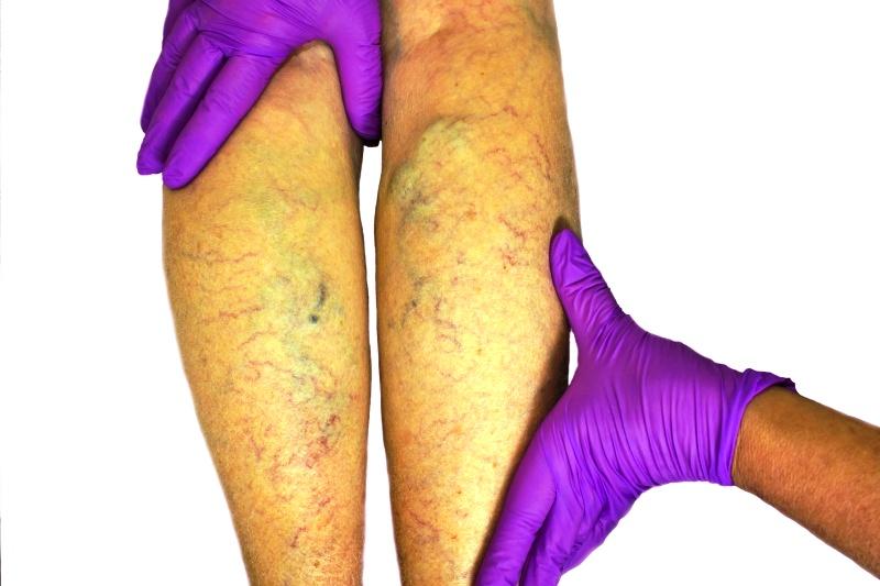 Тромобзные образования на ногах