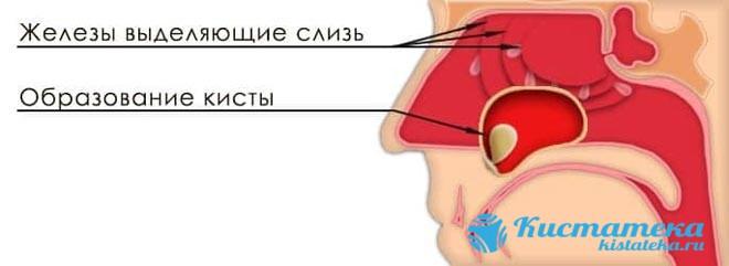 Патология состоит из отечной избыточной жидкости и соединительной ткани