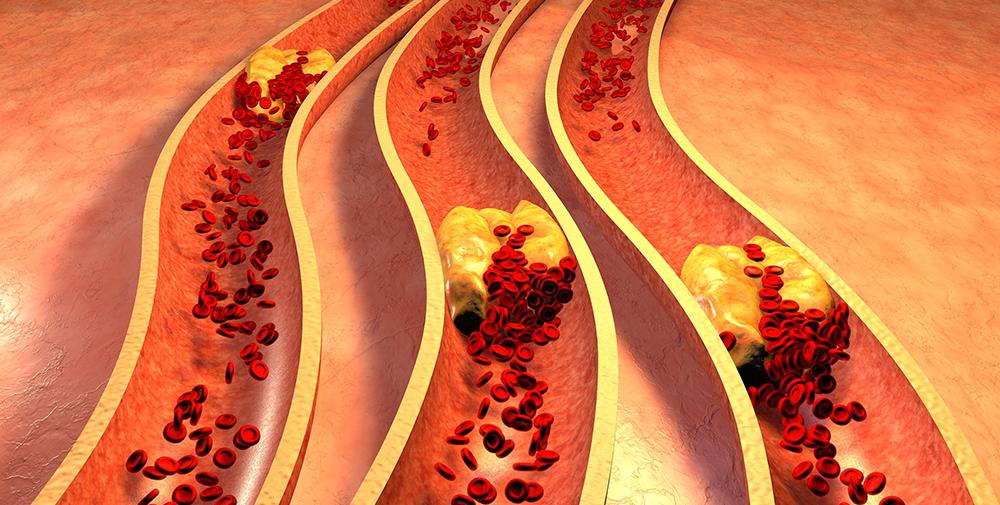 Страдают облитерирующим атеросклерозом чаще люди среднего и пожилого возраста