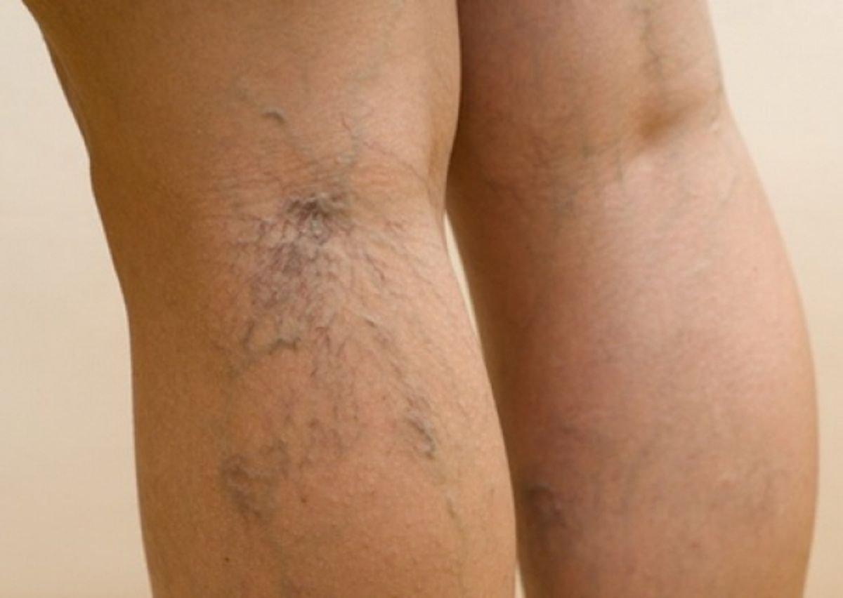 Развитие варикозной болезни ног