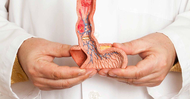 Атеросклероз полового члена выступает в качестве причины патологических процессов