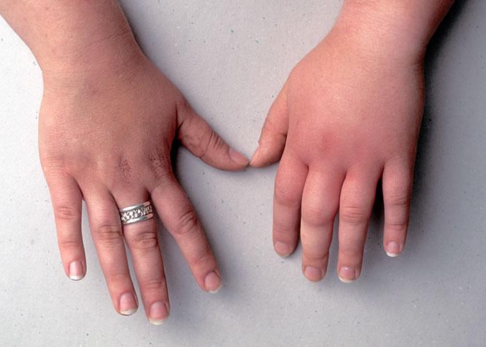 отек руки от укуса насекомого