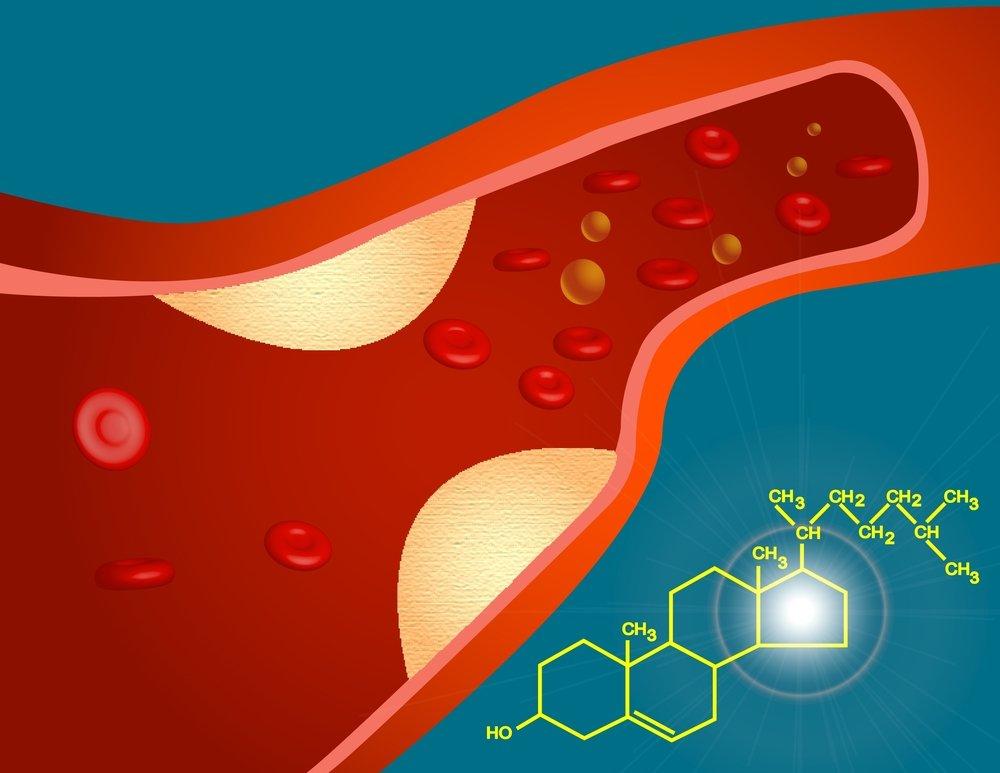 Признаки атеросклероза имеют значительные отличия и зависят от вида поражённых сосудов.