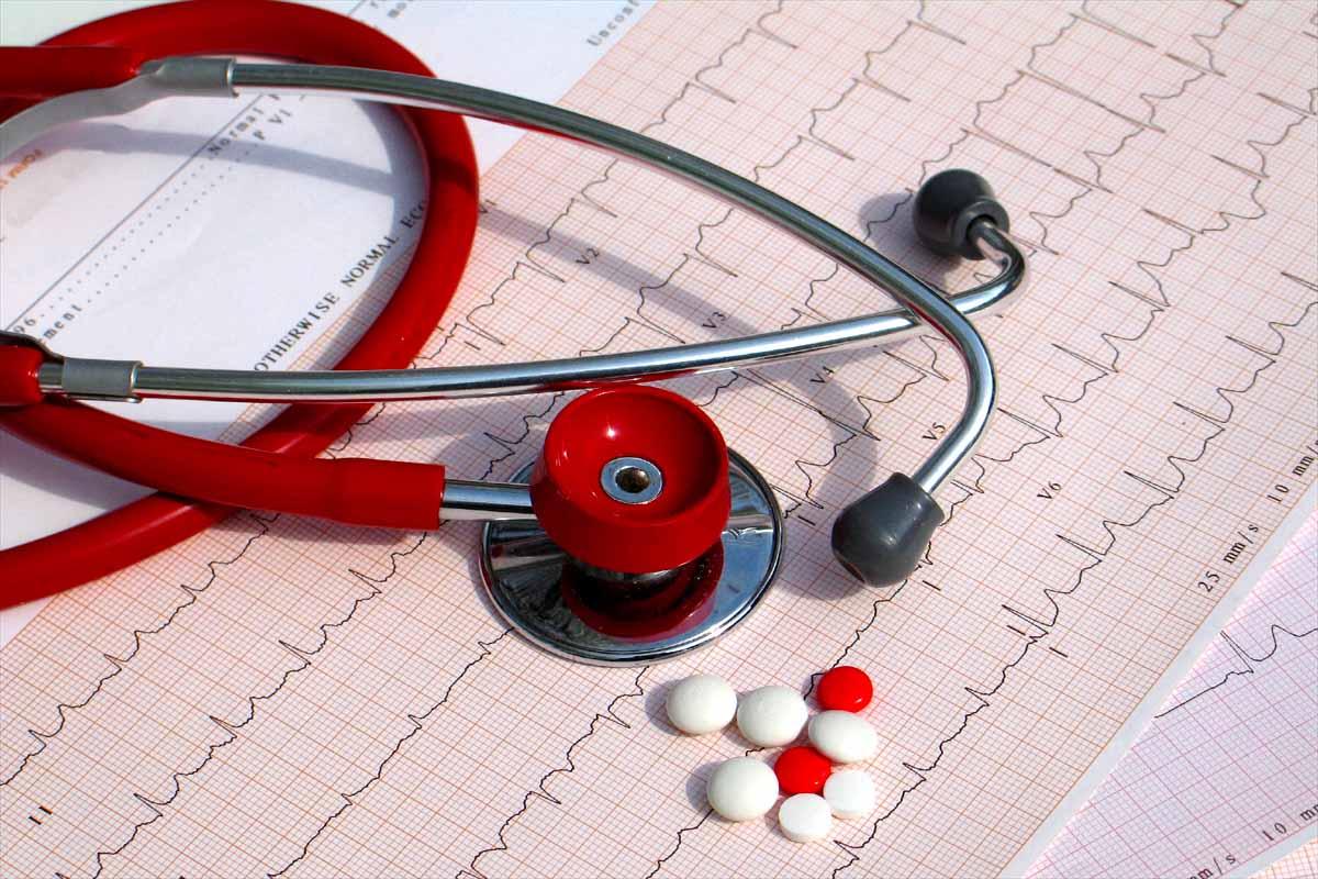 Нарушение ритма сердца — код по МКБ 10