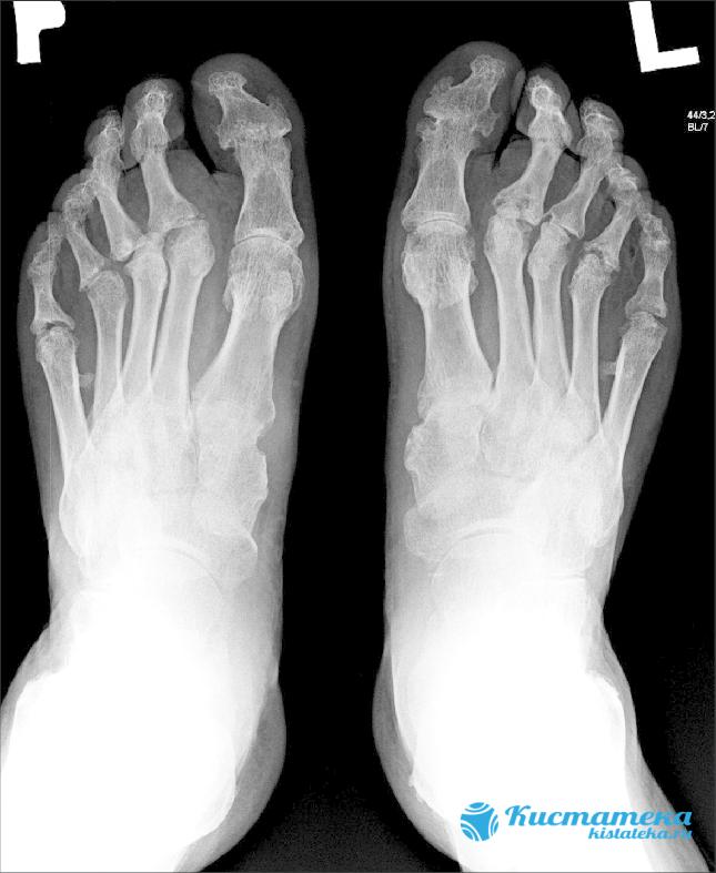 Патология диагностируется на рентгене
