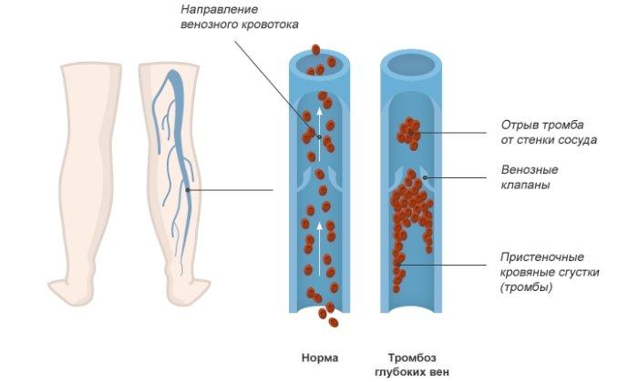 Причины образования тромба