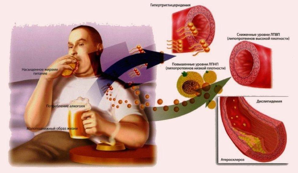 Гипертоническая болезнь сказывается на кровяном давлении