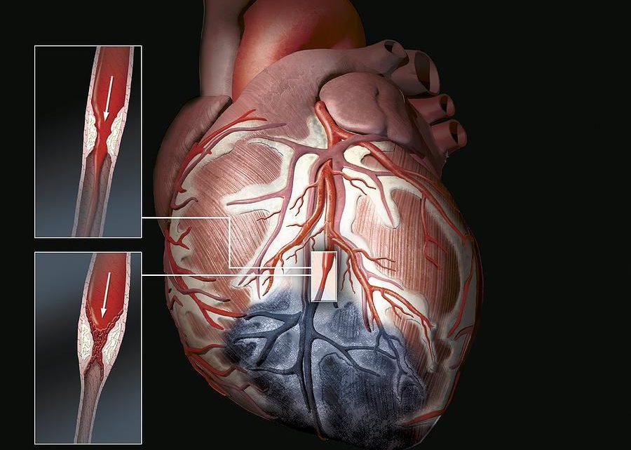 Постинфарктный кардиосклероз выражается сердечной недостаточностью и сбоями в сердечном ритме