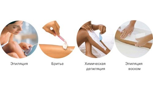 Распространенные методы эпиляции