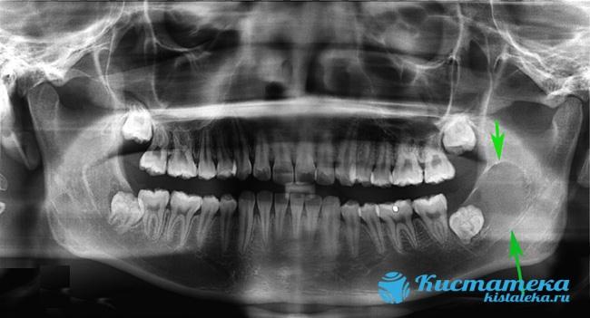 Последствием развития заболевания можеть стать формирование кисты челюсти