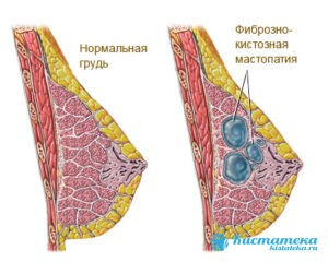 Мастопатия – доброкачественное изменение молочны желез