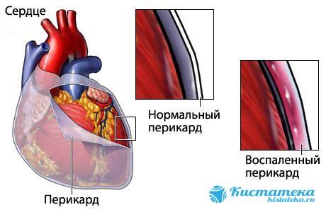 Воспаление перикарда вследствие перенесенны заболеваний (почек, туберкулез, инфаркт и т.д.)
