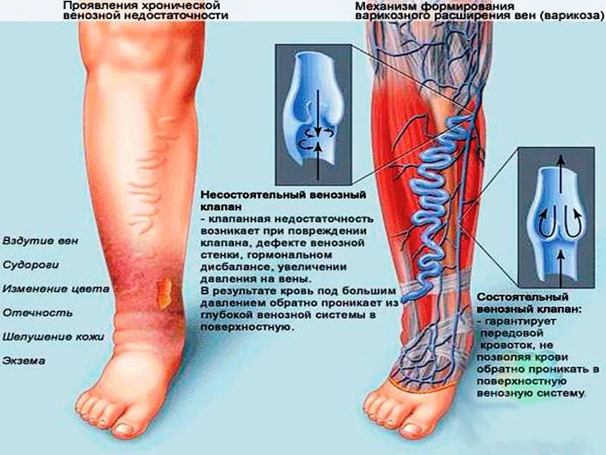 Механизм формирования варикозного расширения вен (варикоза)