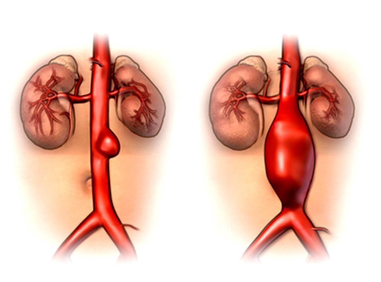 При полном перекрытии аорты кальцинозом пациент умирает