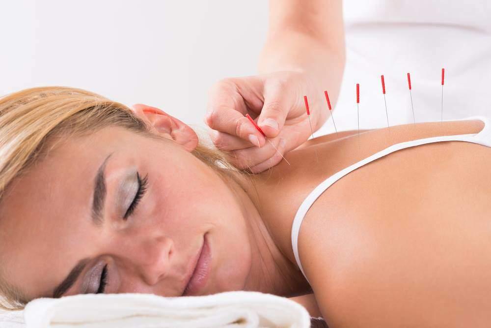 отзывы о иглотерапии при остеохондрозе