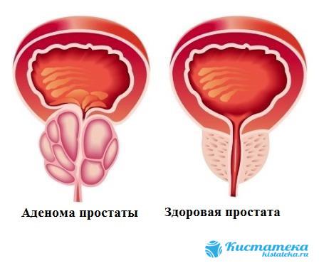 Массаж облегчает боль и налаживает работу внутреннего органа