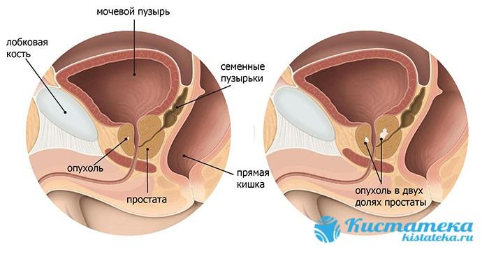 Опуоль не причиняет неудобств, пока значительно не увеличится в размера