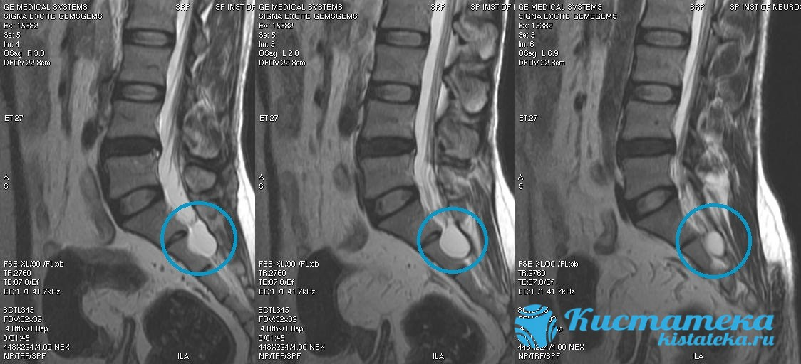 Может образоваться во все отдела позвоночника, кроме шейного, но чаще в нижней части спины