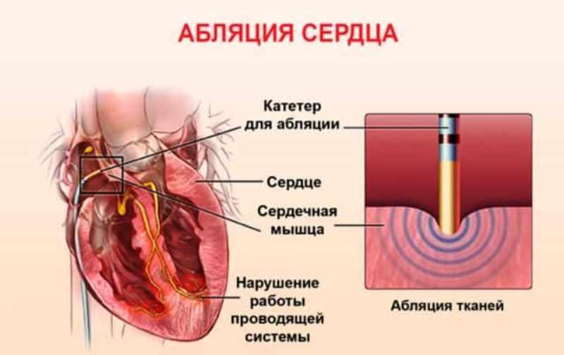 Сердечная абляция