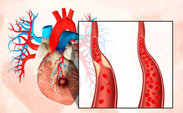 Разрыв бляшки, которая может находиться где угодно в сосудистой системе, приводит к закупорке (тромбозу) коронарной артерии оторвавшимся от бляшки тромбом