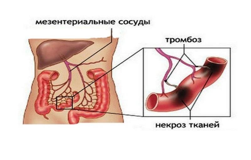 Все о мезентериальном тромбозе. Как выявить и вылечить недуг