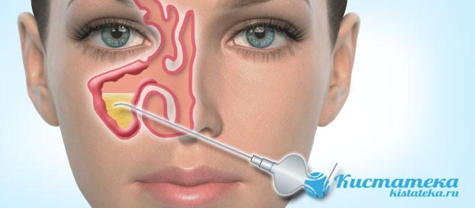 После удаления эндоскопом не остается почти никаки изъянов на коже
