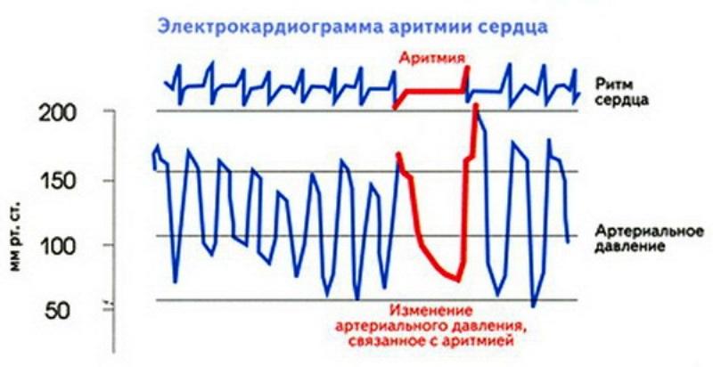 Аритмия на кардиограмме
