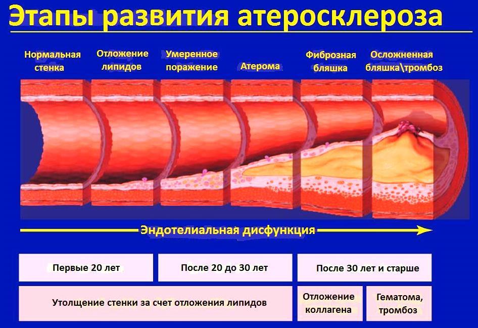 Первый этап атеросклероза характеризуется формированием жировых пятен