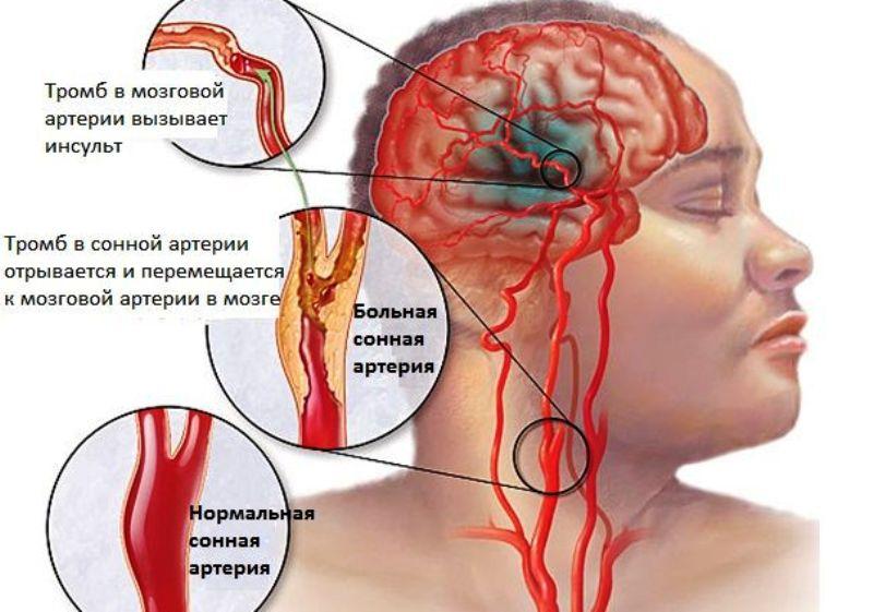 Цереброваскулярное заболевание