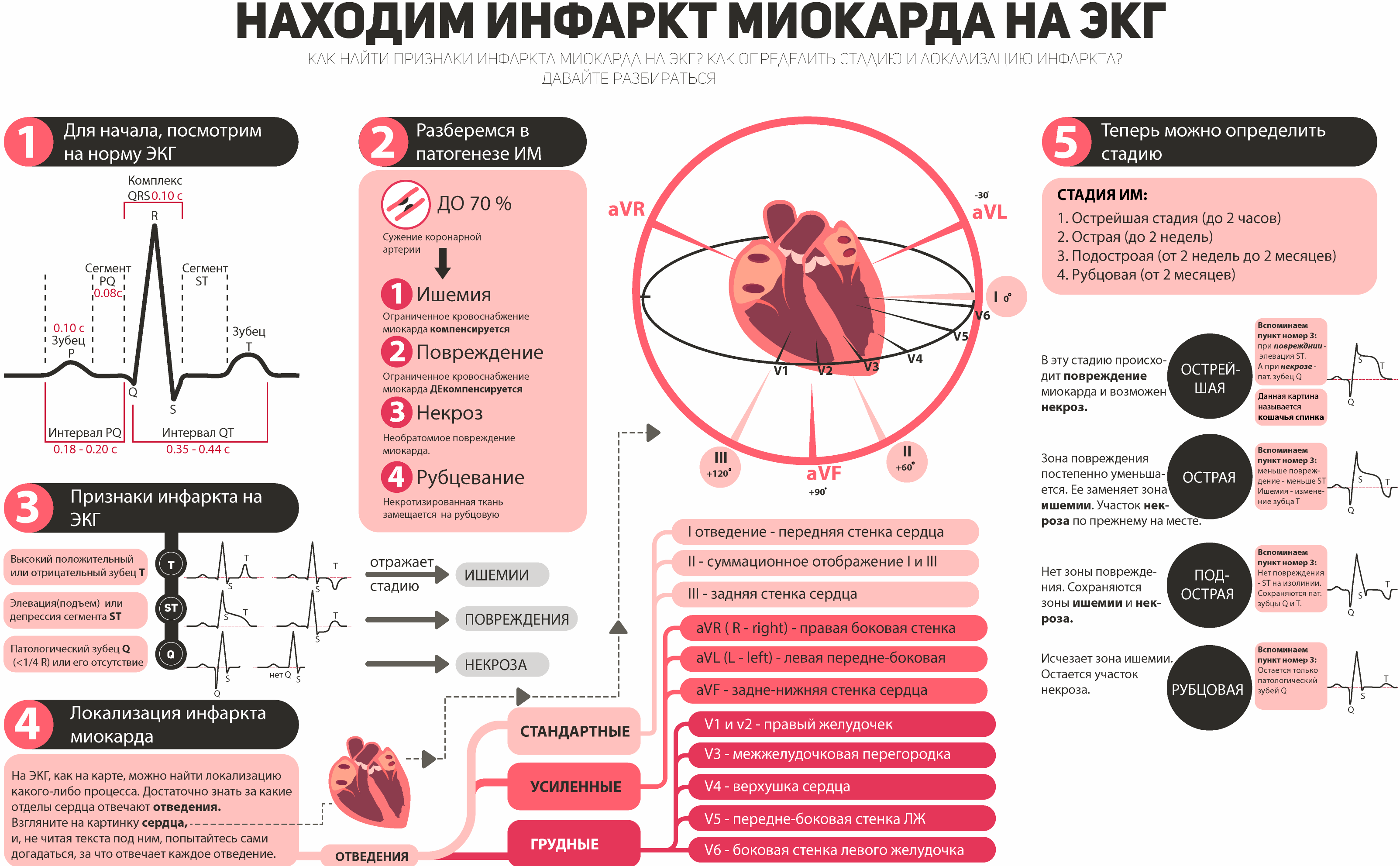 Важно помнить, что диагностика инфаркта миокарда не должна основываться только лишь на изменениях ЭКГ