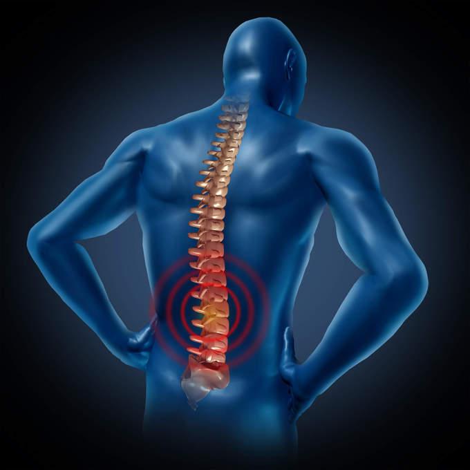 как бороться с остеохондрозом с корешковым синдромом