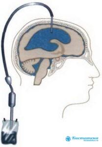 Шунтирование осуществляется через дренажную трубку, по которой удаляют содержимое кисты