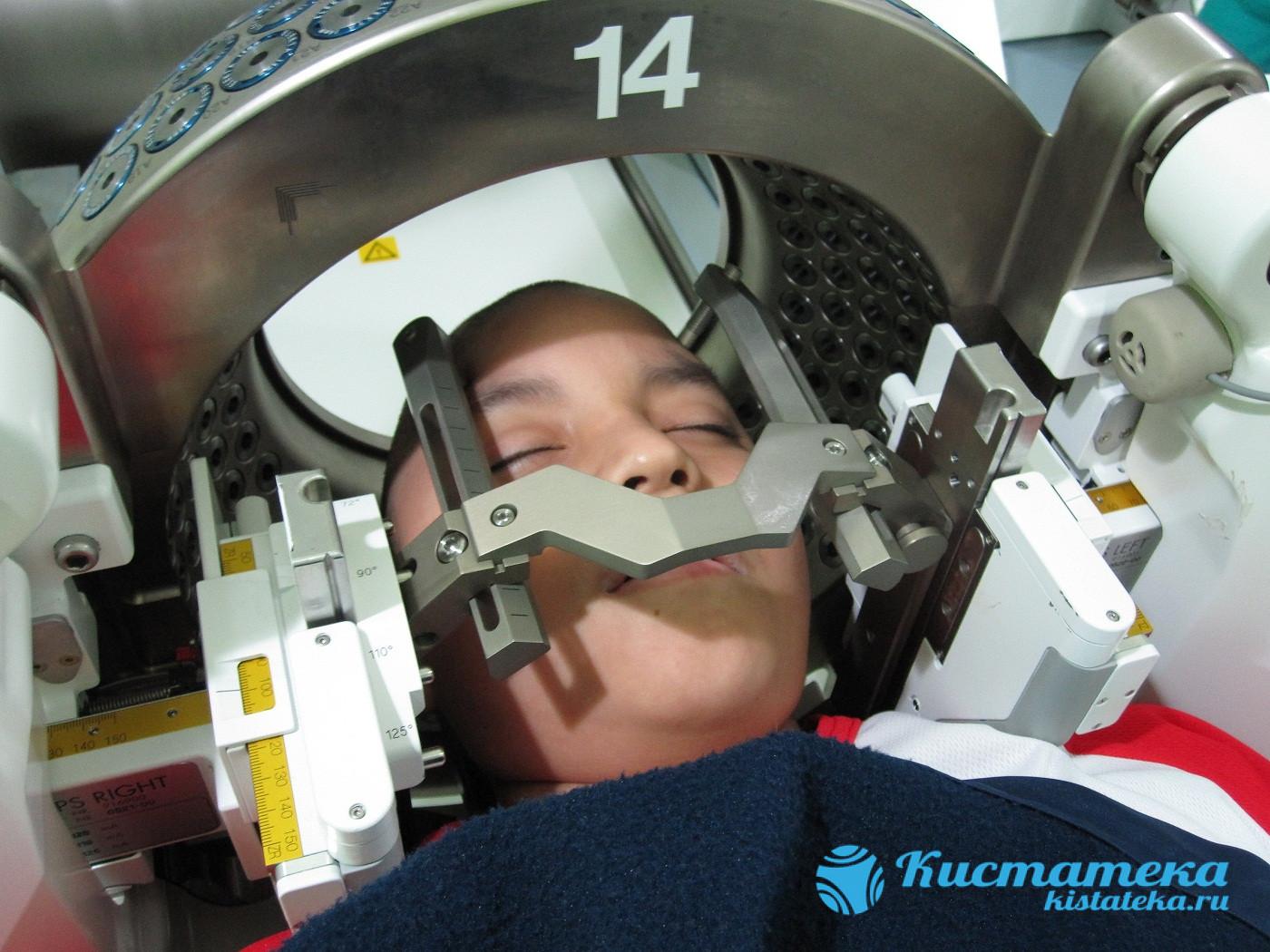 Радиоирургическое вмешательство
