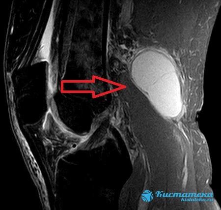 Расширенная магнитно-резонансная томография наиболее эффективно оценивает повреждение сустава