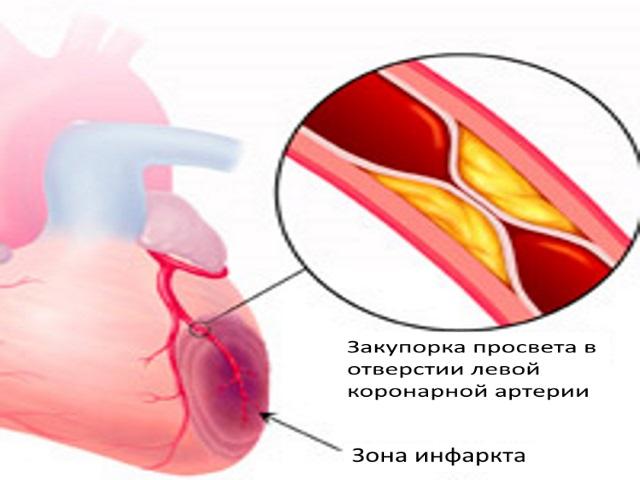 Вследствие этого, в обескровленном участке нарушаются физиологические процессы, накапливаются продукты распада, это приводит к некрозу (отмиранию)