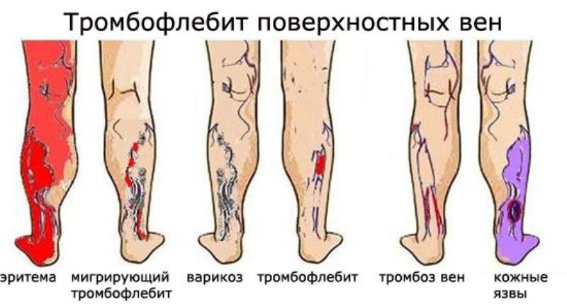 Как предотвратить появление тромбоза после операции