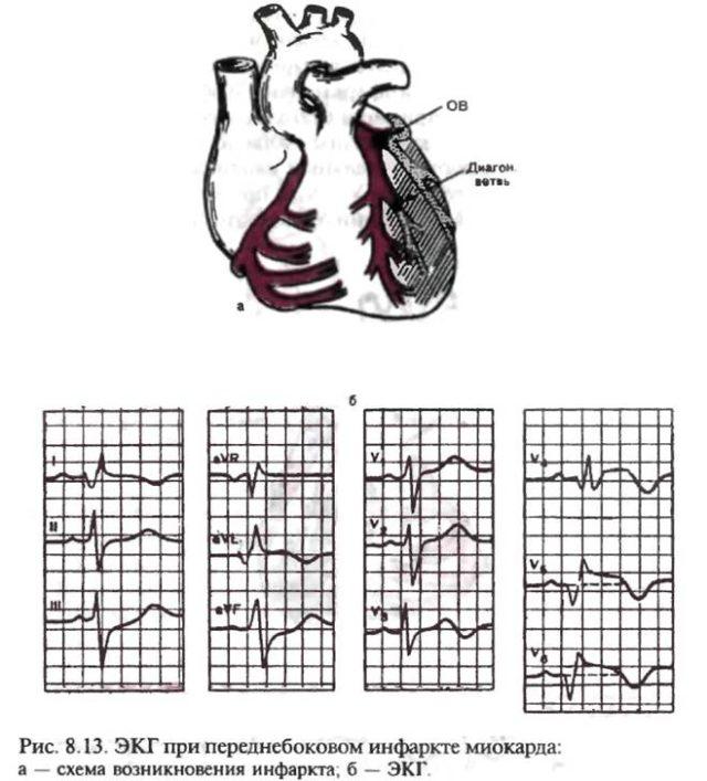 ЭКГ при инфаркте миокарда служит для врача бесспорным авторитетным доказательством