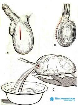 Операция по Вилькельману осуществляется с использованием анестезии (общей или местной)