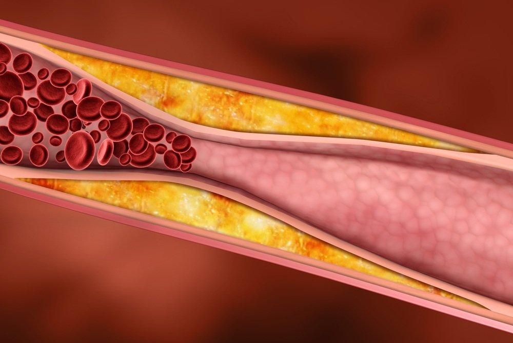 Холестерин воздействует на работу органов пищеварения
